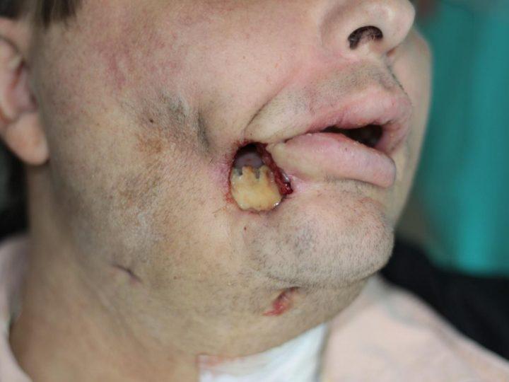 Osteonekrózy čeľuste asánky – na čo treba myslieť pri extrakcii zuba?