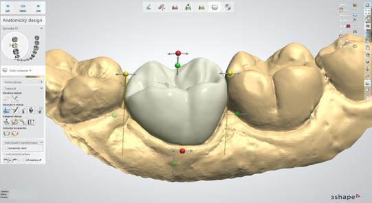 Digitálna stomatológia už nie je budúcnosť