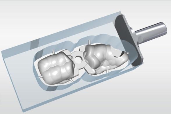 Implantológia: fáza plánovania liečby