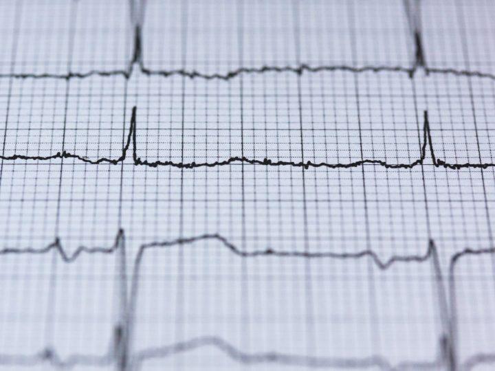 Spojitosť medzi používaním ústnej vody a zvýšením krvného tlaku