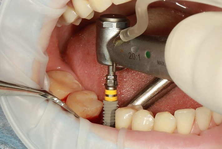 Neurosenzitívne dráždenie nervus alveolaris inferior po zavedení implantátov