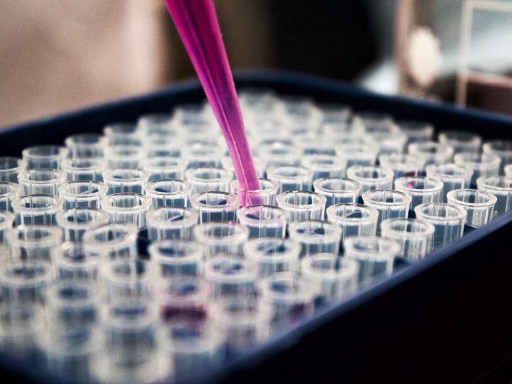 Aplikácia kmeňových buniek v ortodoncii