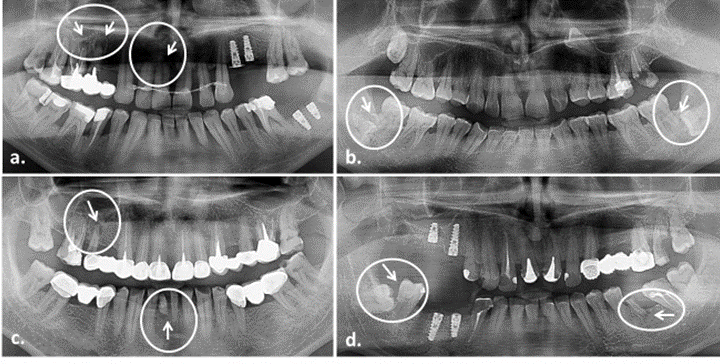 Úloha panoramatických RTG snímkov v diagnostike resorpcie