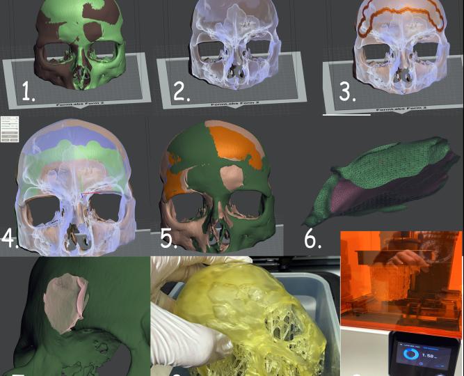 Bio – kompatibilná 3D tlač v zubnom lekárstve