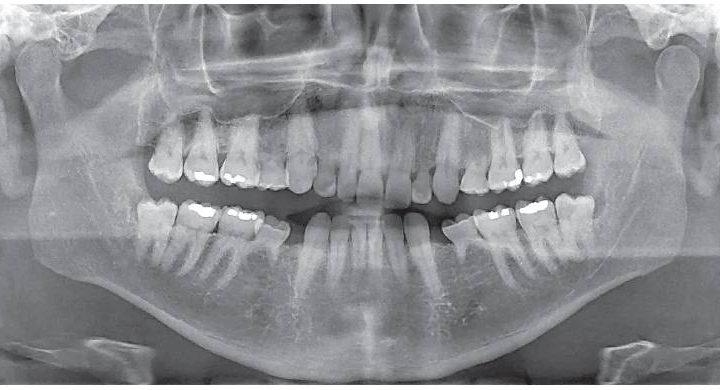 Mali by sa mliečne zuby uchovávať u dospelých pacientov? Čo tak kmeňové bunky? Je rozumné ich zachovať?