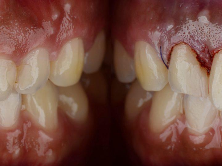 Úspešné zvládnutie GUMMY SMILE pomocou gingivektómie a injekčného podania botulotoxínu