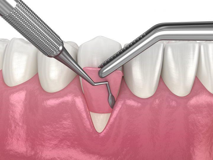 Vyžadujú recessus gingivalis chirurgickú liečbu?